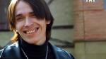 улыбка Георгия Малиновская, зубы Малиновского